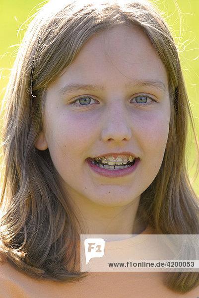 Mädchen mit Zahnspange - Lizenzpflichtiges Bild