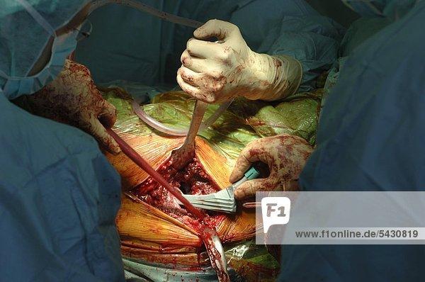 Kaiserswerther Diakonie Klinik F 252 R Hand Und
