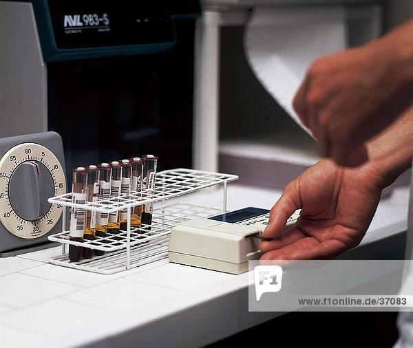 Doktors Hände Blut mit medizinischer Geräte im Labor testen