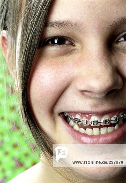 Nahaufnahme Portrait junge Teenagerin lächelnd mit geschweiften Klammern mund
