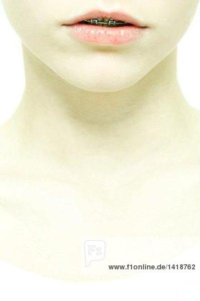 Teenagermädchen mit Zahnspange  extreme Nahaufnahme von Gesicht und Hals  Mund