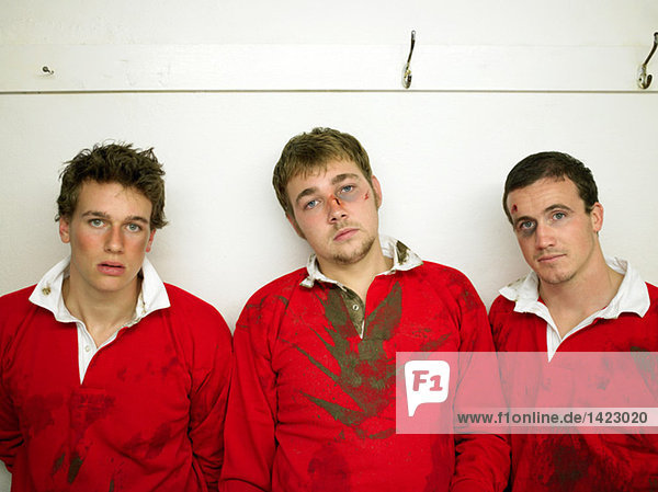 Bruised rugby players