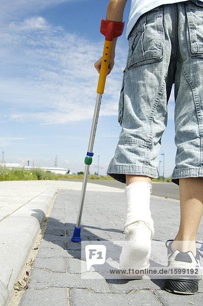 Niedrige Schnittansicht jungen zu Fuß unterwegs mit gebrochenem Bein Niedrige Schnittansicht jungen zu Fuß unterwegs mit gebrochenem Bein