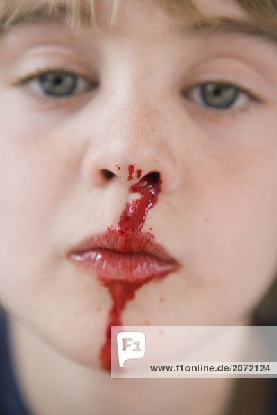 Ein Kleiner Junge Mit Kunstlichem Nasenbluten 237025 8 9 Jahre
