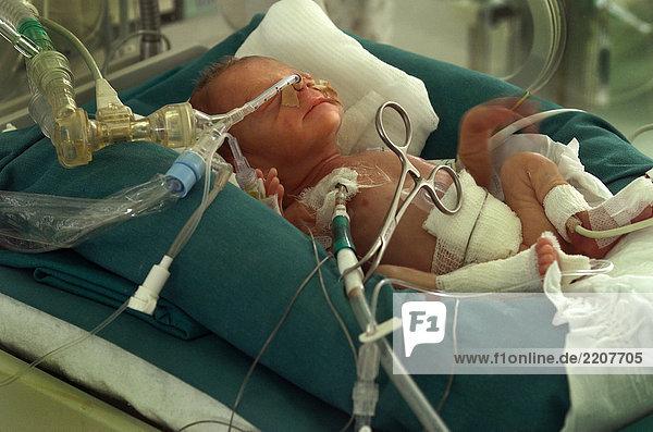 25 woche schwangerschaft neugeborenen unter intensivtherapie lizenzpflichtiges bild. Black Bedroom Furniture Sets. Home Design Ideas