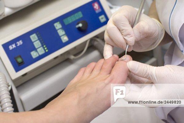 Frau medizinische Behandlung von ihren Füßen