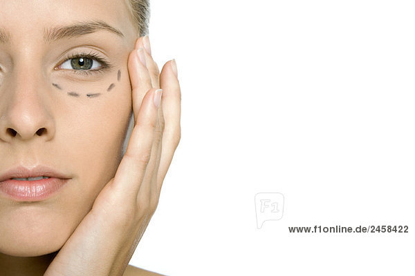 Woman with plastic surgery markings under her eye  close-up  cropped