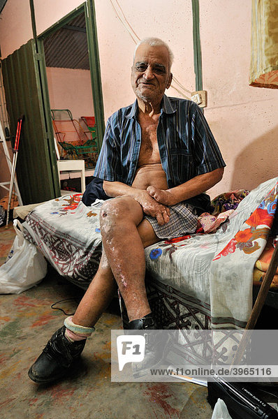 Leprosy patient  78 years  with crippled hands and injuries on his legs  leprosy colony Agua de Dios  Colombia  South America