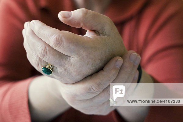 Woman's rheumatic hands  symbol for rheumatism