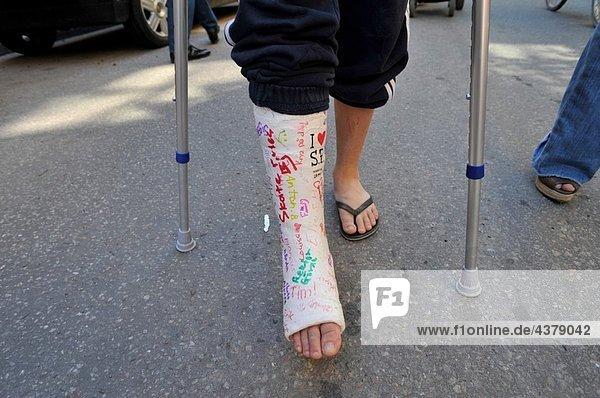 Stockholm, Hauptstadt ,Junge - Person ,Menschliches Bein, Menschliche Beine ,Unterarmgehstütze ,zerbrochen ,Schweden