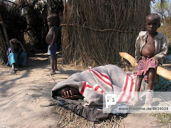 A malnourished child rests in a blanket watched over by another small boy Feeding centres and other humanitarian aid were organised in Angola after widescale malnutrition during and following the country¥s civil war