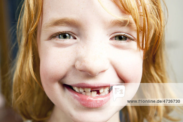 Portrait of a girl with red hair with a missing tooth