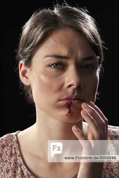 Eine Frau mit blauen Flecken und blutigen Lippen.