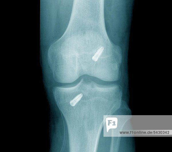 Röntgenbefunde einer chirurgischen Praxis . Das Röntgenbild zeigt Knie nach Kreuzband - OP