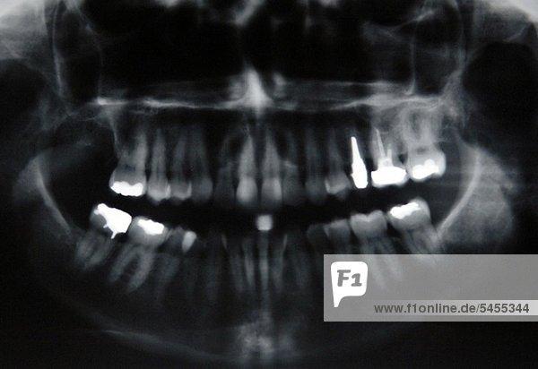 Röntgenbild eines Kiefers mit Zähnen