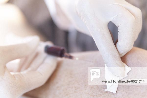 Ärztin alternatiße  die nach einer Blutprobe Blut abtupft. Ärztin alternatiße, die nach einer Blutprobe Blut abtupft.