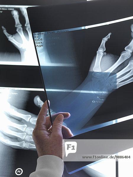Arzt betrachtet Röntgenaufnahmen der Hand im Krankenhaus