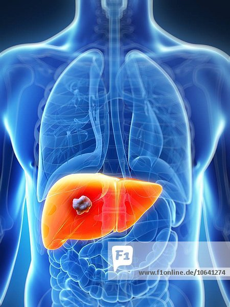 Human liver cancer  artwork