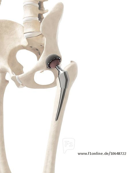 Human hip replacement  artwork