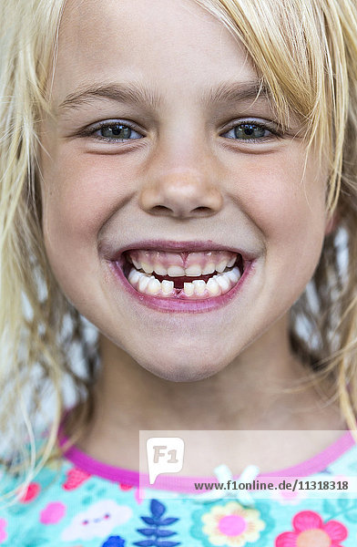 Portrait of little girl showing tooth gap