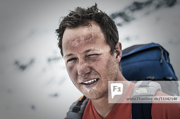 A climber at Everest Base Camp the day after he has successfully summited Everest showing signs of exposure at high altitude  Khumbu Region  Nepal  Asia