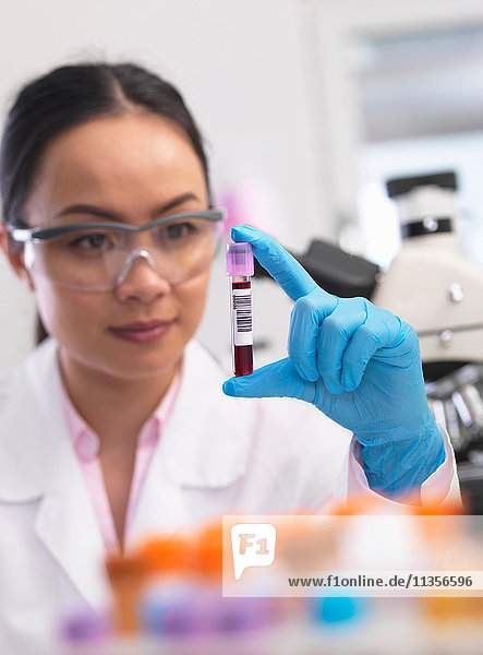 Wissenschaftler  der klinische Proben für medizinische Tests in einem Labor vorbereitet