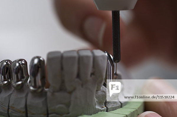Gipsmodell eines Gebisses im Zahnlabor