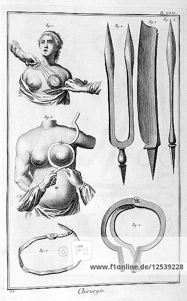 Breast surgery  1751-1777. Artist: Unknown