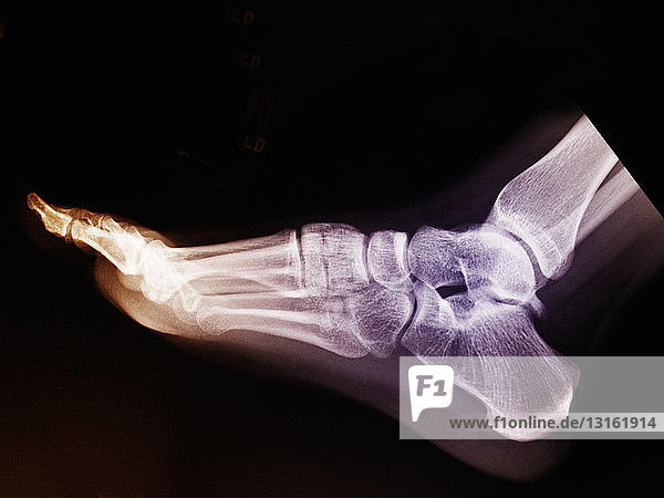 normal foot x-ray of a 17 year old woman