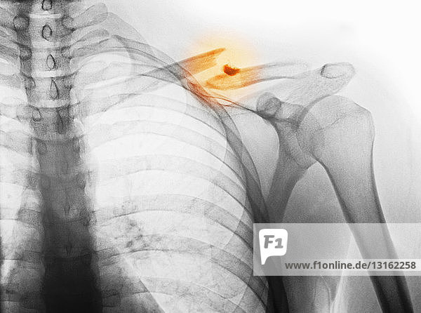 x-ray showing fractured clavicle
