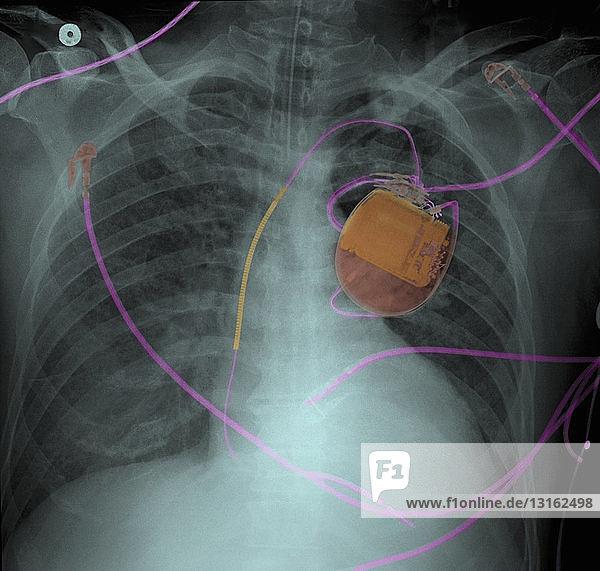 Thoraxröntgenbild von Herzschrittmacher und Lungenödem