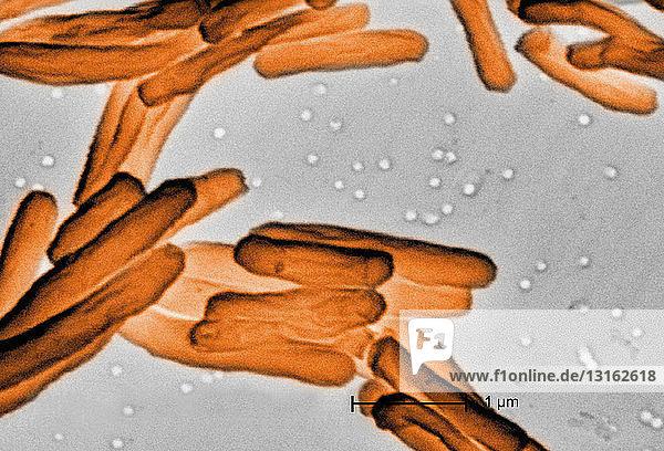 SEM von Tuberkulose-Bakterien
