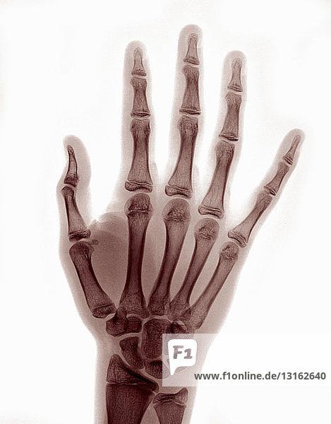 Röntgenbild der Hand mit reduzierter Daumenluxation