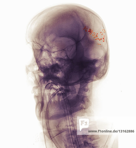 skull x-ray of man in a motorcycle accident