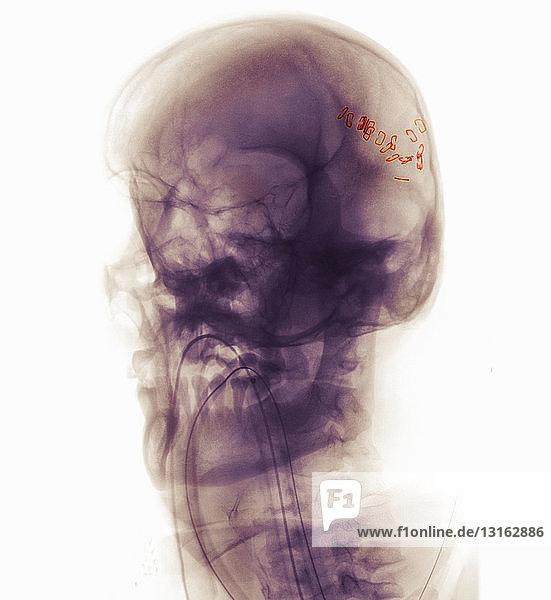 Schädel-Röntgenaufnahme eines Mannes bei einem Motorradunfall