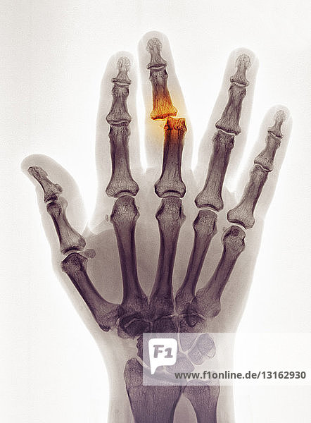 hand x-ray showing a dislocation