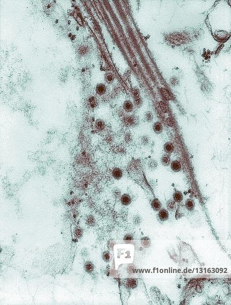 TEM of Colorado tick fever virus (CTFV)