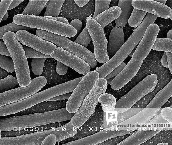 SEM von Escherichia coli