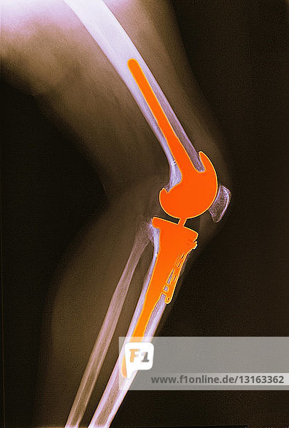 x-ray of leg with total knee replacement