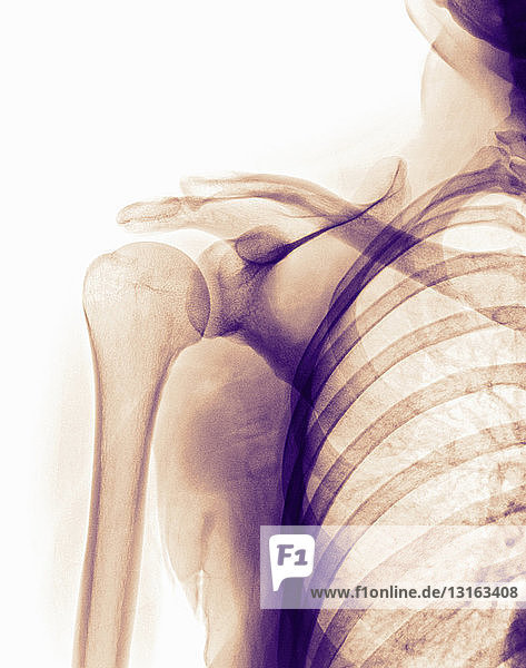 normal shoulder x-ray of a 35 year old woman