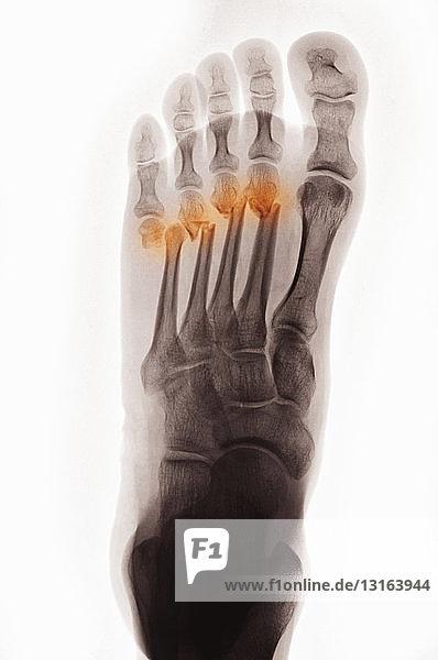 Röntgenbild des Fußes mit Fraktur des Mittelfußknochens