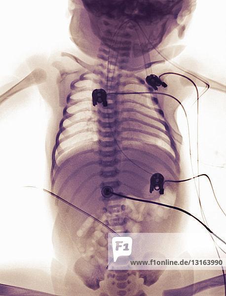 Röntgenbild eines neugeborenen Mädchens