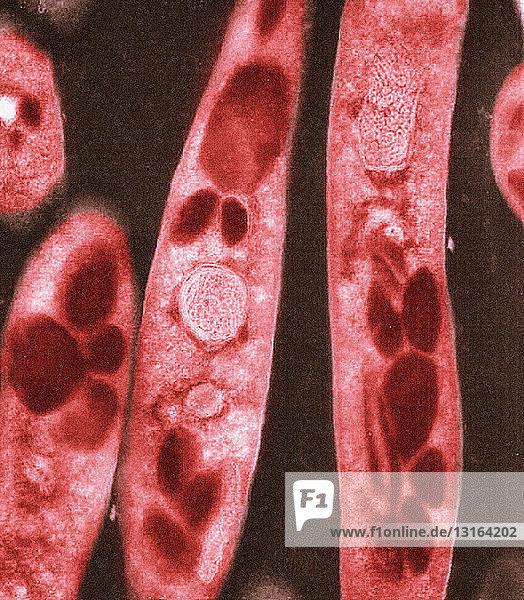 Electron micrograph of Bacillus anthracis bacteria