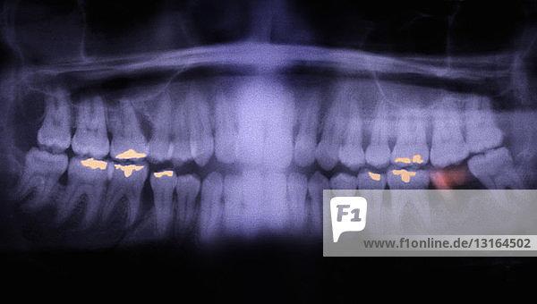 Panorex of teeth showing cavities