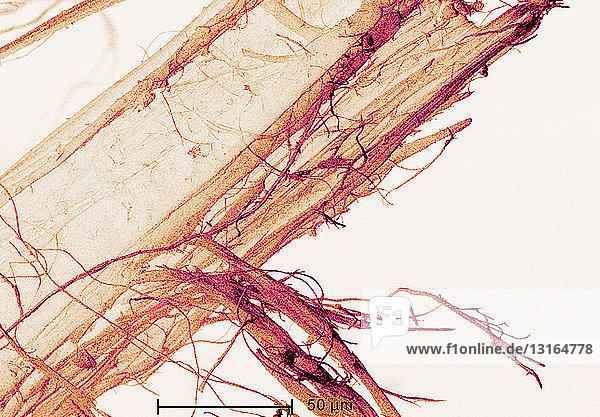 Rasterelektronenmikroskopische Aufnahme von Asbest