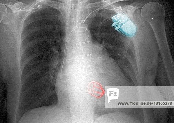 Thorax-Röntgenbild mit Klappe und Herzschrittmacher