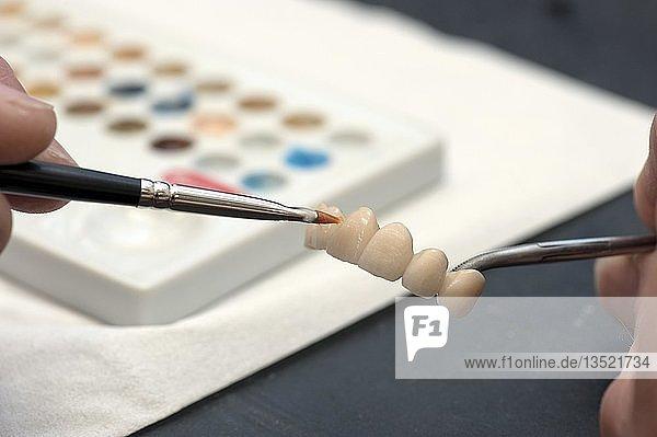 Endgültiger Farbanstrich auf die Keramikkronen