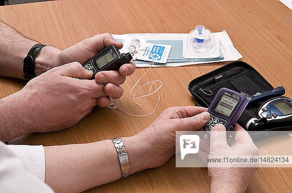 EXTERNAL INSULIN PUMP