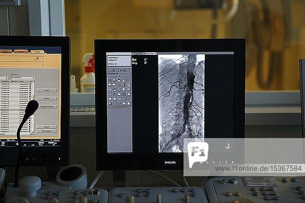 Interventionelle Radiologie  Computerbild am Monitor  Überwachung Durchgängigkeit der Gefäße  Karlsbad  Tschechien  Europa
