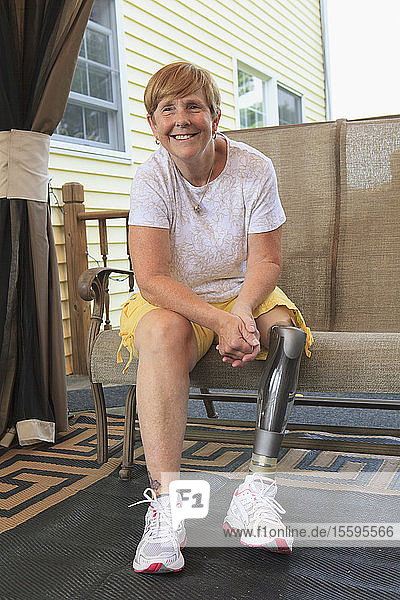 Woman with a prosthetic leg sitting on her porch